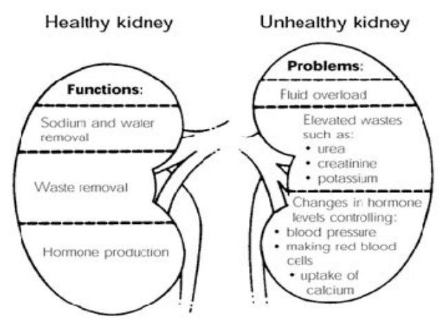 acute renal failurepower 1 Keywords: acute renal failure, clusterin, cystatin-c, cysteine-rich protein-61 (cyr -61), elisa, interleukin-18 (il-18), kidney injury molecule-1 (kim-1),.