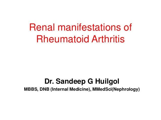 Renal manifestations ofRheumatoid ArthritisDr. Sandeep G HuilgolMBBS, DNB (Internal Medicine), MMedSci(Nephrology)