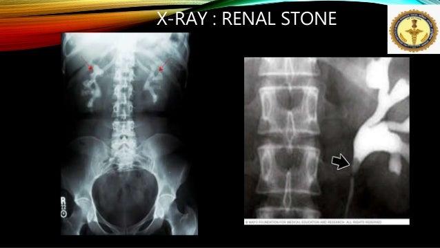 Kidney Stone By Dr Anil Kumar Associate Professor Aiims Patna