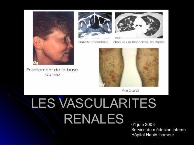 LES VASCULARITESLES VASCULARITES RENALESRENALES 01 juin 2008 Service de médecine interne Hôpital Habib thameur