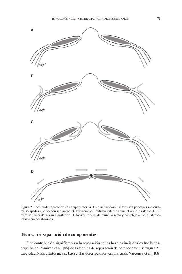 REPARACIÓN ABIERTA DE HERNIAS VENTRALES INCISIONALES 71 Técnica de separación de componentes Una contribución significativ...