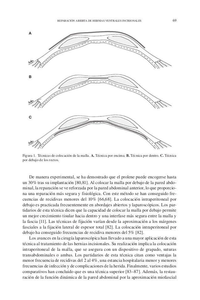 REPARACIÓN ABIERTA DE HERNIAS VENTRALES INCISIONALES 69 De manera experimental, se ha demostrado que el prolene puede enco...