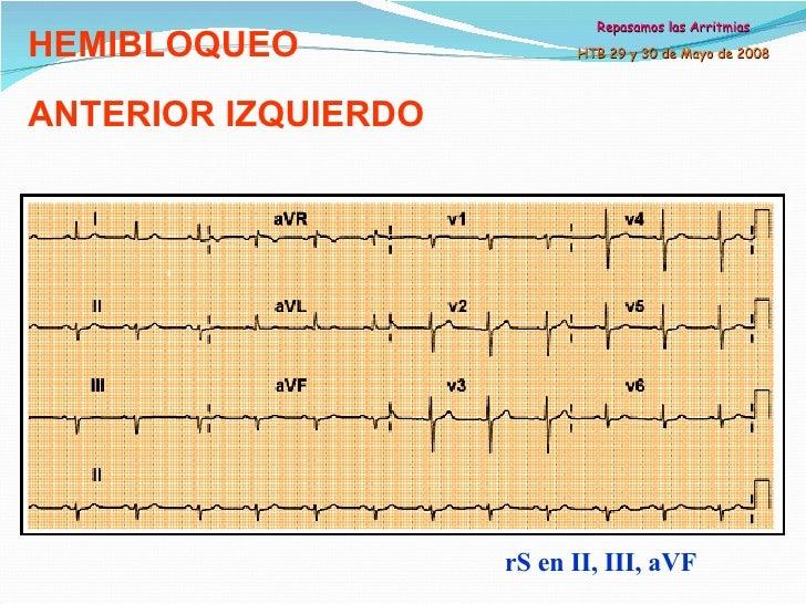 HEMIBLOQUEO ANTERIOR IZQUIERDO EBOOK DOWNLOAD