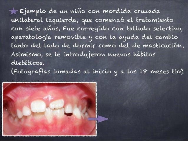 Ejemplo de un niño con mordida cruzada unilateral izquierda, que comenzó el tratamiento con siete años. Fue corregido con ...