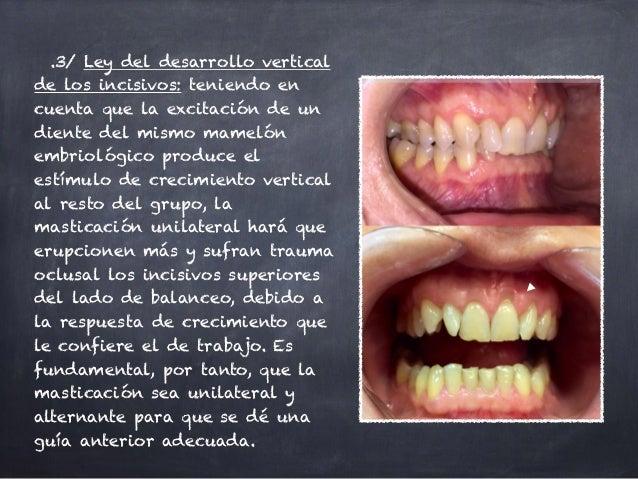 .3/ Ley del desarrollo vertical de los incisivos: teniendo en cuenta que la excitación de un diente del mismo mamelón embr...