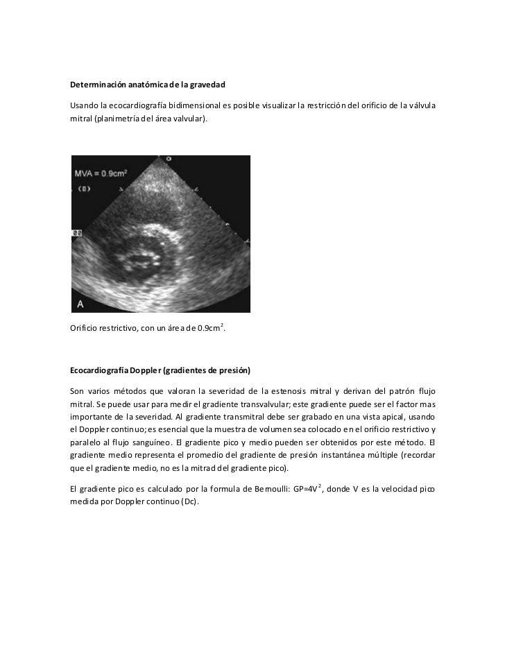 Asombroso Válvula Mitral Tee Anatomía Festooning - Imágenes de ...
