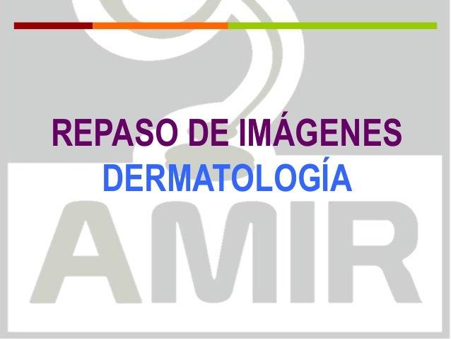 REPASO DE IMÁGENES DERMATOLOGÍA
