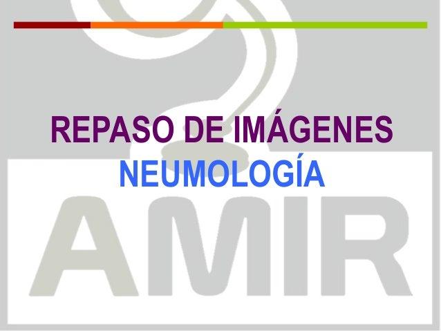 REPASO DE IMÁGENES NEUMOLOGÍA