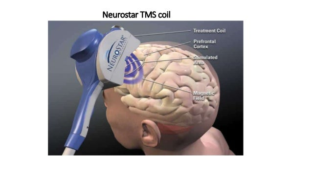 Repetitive Transcanial Magnetic Stimulation R Tms For