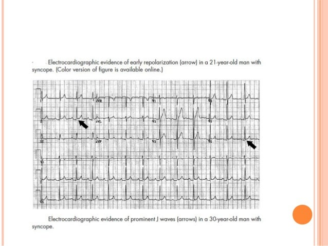 NOTCHED QRS IS FATAL