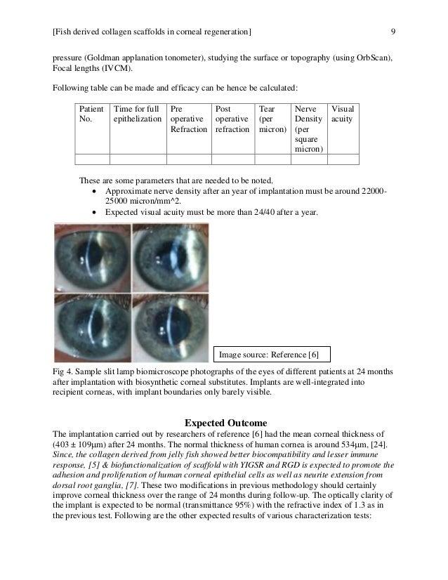 Fish derived collagen for corneal regeneration