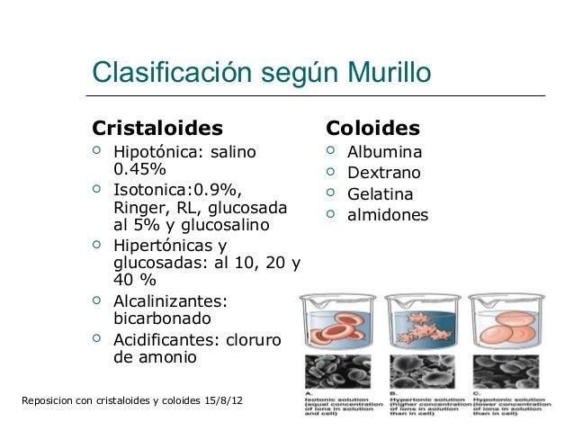 Reposición con coloides y cristaloides