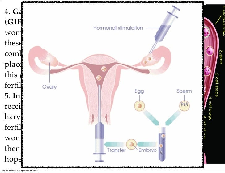 reproductive technologies Assisted reproductive technology pros and cons - what is assisted reproductive technology (art) art art is an umbrella term for the most advanced and successful treatment types for infertility ivf (in vitro fertilization) is by far the most common nowadays gift (gamete intrafallopian transfer) and zift (zygote intrafallopian transfer) also.