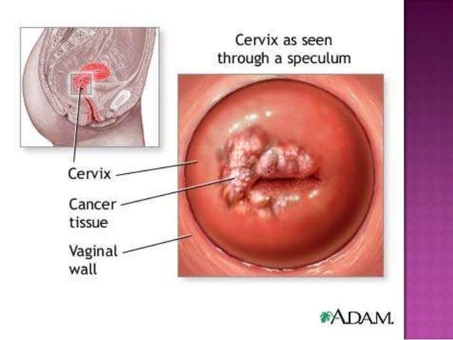 como-es-una-vagina-virgen