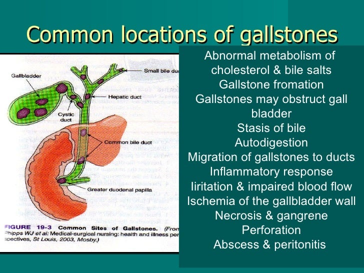 Common locations of gallstones Abnormal metabolism of  cholesterol & bile salts Gallstone fromation Gallstones may obstruc...