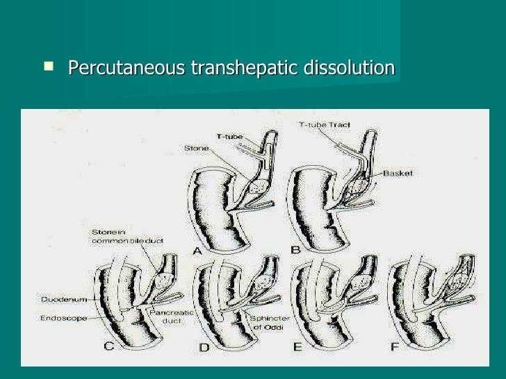 <ul><li>Percutaneous transhepatic dissolution  </li></ul>