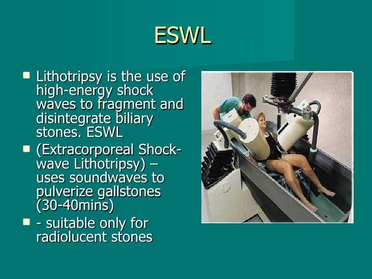 ESWL  <ul><li>Lithotripsy is the use of high-energy shock waves to fragment and disintegrate biliary stones. ESWL </li></u...