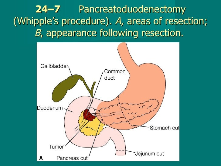 24–7   Pancreatoduodenectomy (Whipple's procedure).  A , areas of resection;  B , appearance following resection.