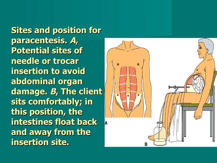Sites and position for paracentesis.  A , Potential sites of needle or trocar insertion to avoid abdominal organ damage.  ...