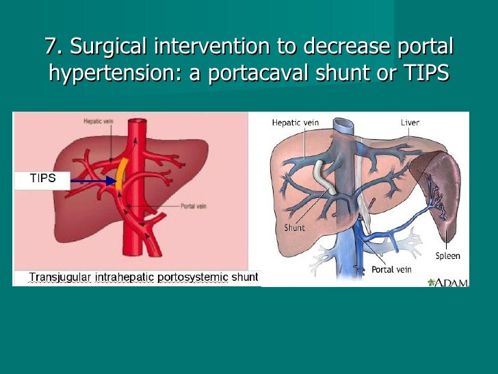7. Surgical intervention to decrease portal hypertension: a portacaval shunt or TIPS