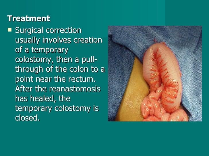 <ul><li>Treatment </li></ul><ul><li>Surgical correction usually involves creation of a temporary colostomy, then a pull-th...