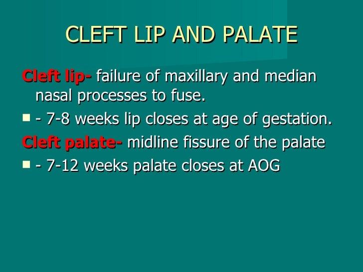 CLEFT LIP AND PALATE <ul><li>Cleft lip-  failure of maxillary and median nasal processes to fuse. </li></ul><ul><li>- 7-8 ...