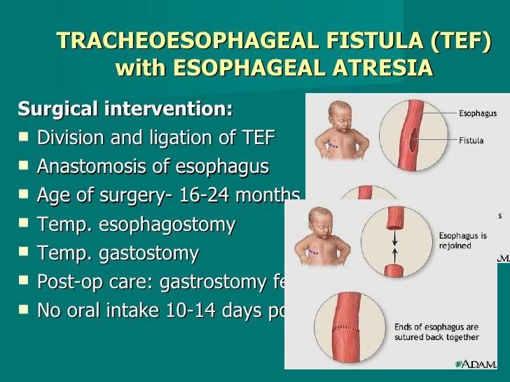 TRACHEOESOPHAGEAL FISTULA (TEF) with ESOPHAGEAL ATRESIA <ul><li>Surgical intervention: </li></ul><ul><li>Division and liga...