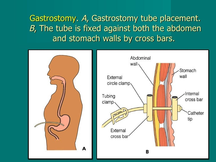 Gastrostomy .  A , Gastrostomy tube placement.  B , The tube is fixed against both the abdomen and stomach walls by cross ...