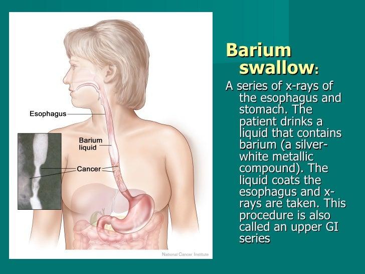 <ul><li>Barium swallow :   </li></ul><ul><li>A series of x-rays of the esophagus and stomach. The patient drinks a liquid ...