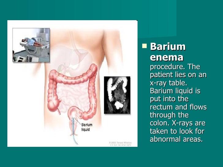<ul><li>Barium enema  procedure. The patient lies on an x-ray table. Barium liquid is put into the rectum and flows throug...