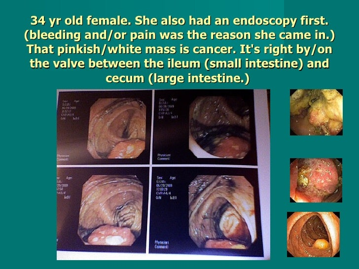 34 yr old female. She also had an endoscopy first. (bleeding and/or pain was the reason she came in.) That pinkish/white m...