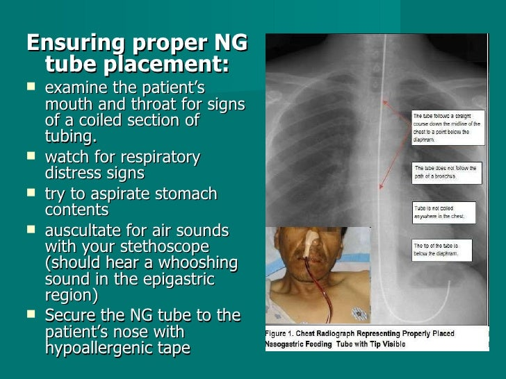 <ul><li>Ensuring proper NG tube placement: </li></ul><ul><li>examine the patient's mouth and throat for signs of a coiled ...
