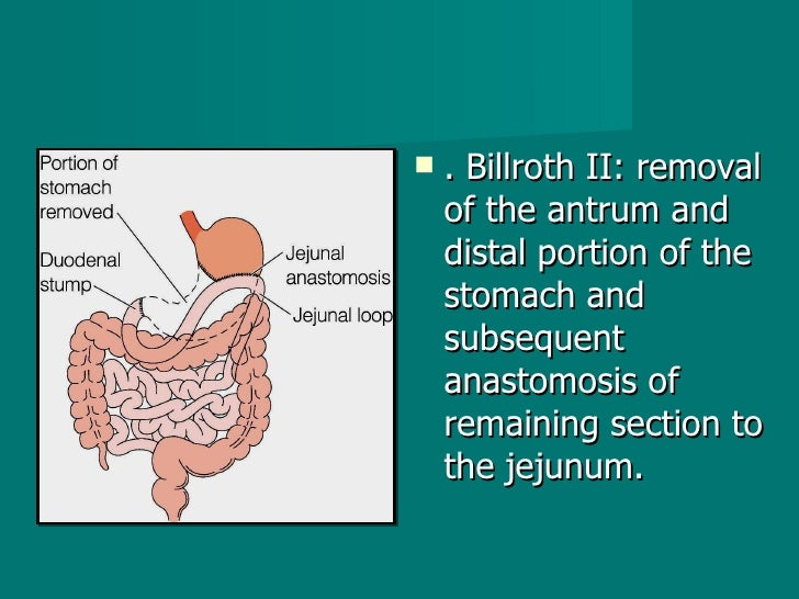 <ul><li>. Billroth II: removal of the antrum and distal portion of the stomach and subsequent anastomosis of remaining sec...