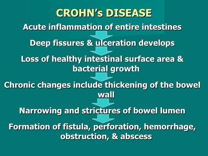 CROHN's DISEASE <ul><li>Acute inflammation of entire intestines </li></ul><ul><li>Deep fissures & ulceration develops </li...