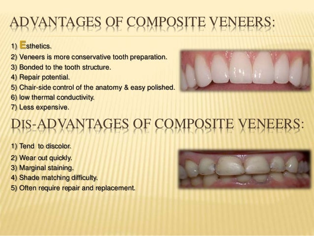Resin Laminate Veneers