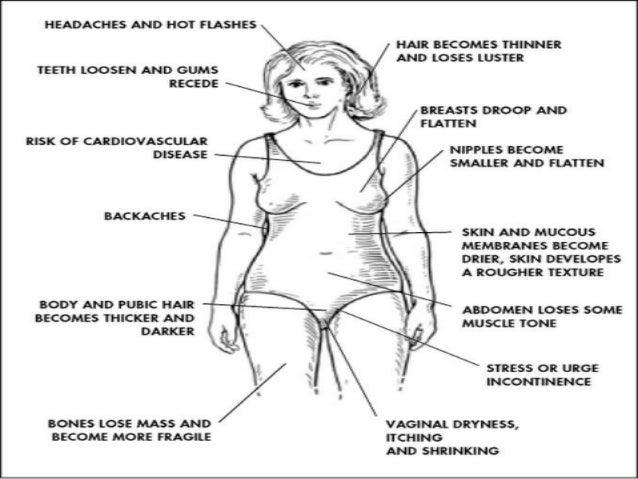 syndrome de la ménopause