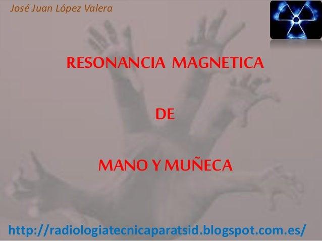 Resonancia de Mano y Muñeca -TSID José Juan López Valera
