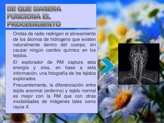  Un latido del corazón muy irregular puede afectar la calidad de las imágenes obtenidas.  La RM no siempre distingue ent...