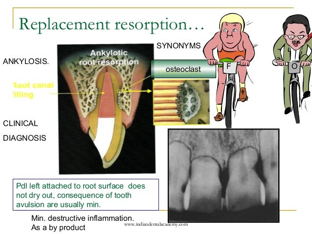 how to tell between cervical resorption and internal root resorption
