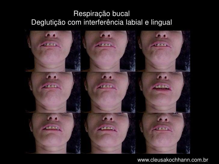 Respiração bucalDeglutição com interferência labial e lingual<br />www.cleusakochhann.com.br<br />