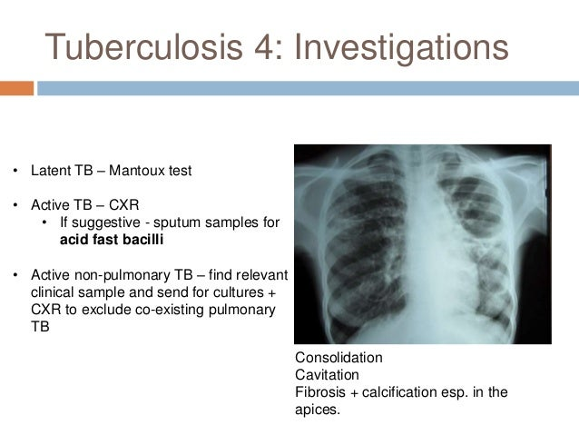 Pneumonia 4: Organisms  Typical CAP Organisms:  Strep. pneumoniae  H. influenzae  Moraxella influenzae  Staph. aureus