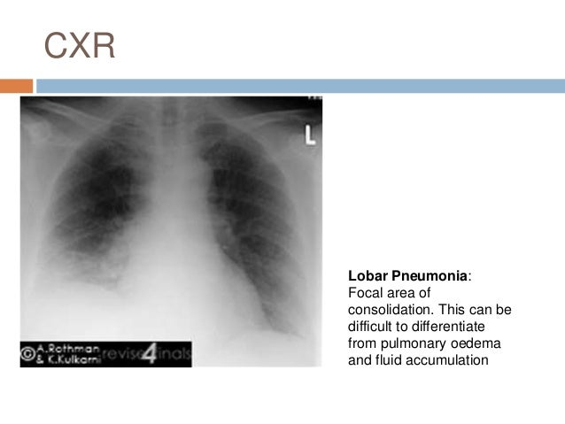 Pneumonia 11: Prevention • Vaccination and penicillin prophylaxis in those at high risk • Hand washing and VAP precautions...