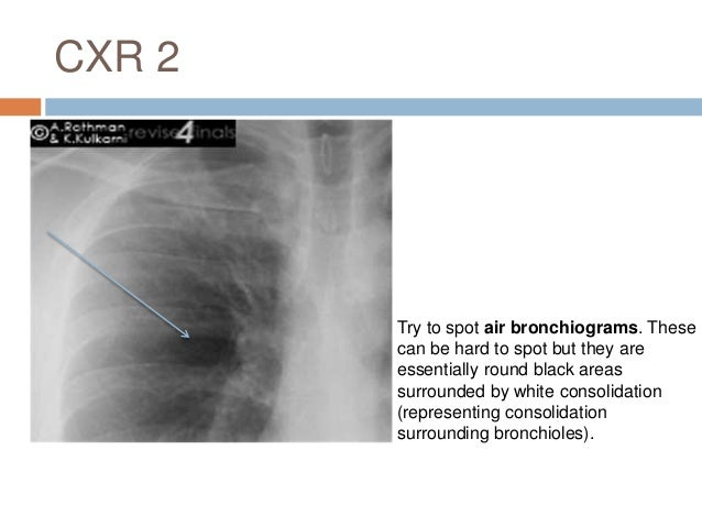 Pleural Effusion 1: Definition  Excessive accumulation of fluid in the pleural space.  Divided into:  Transudate effusi...