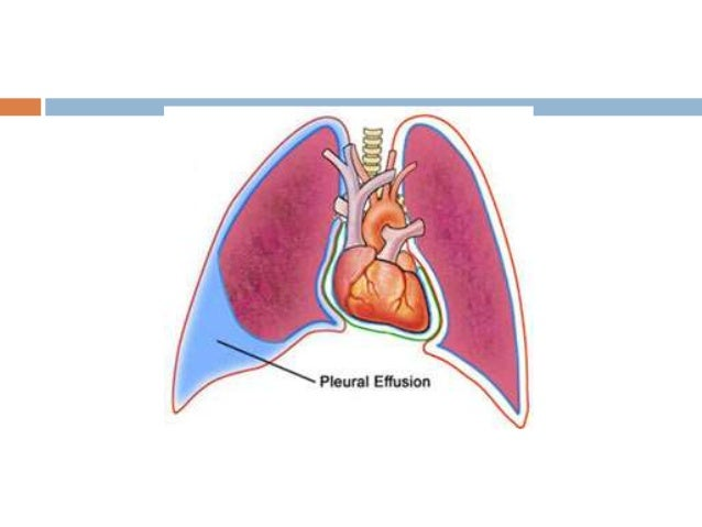 Pleural Effusion 5: Management  Drainage < 2L/24h  Pleurodesis - if recurrent  Thoracoscopic talc pleurodesis  Surgery