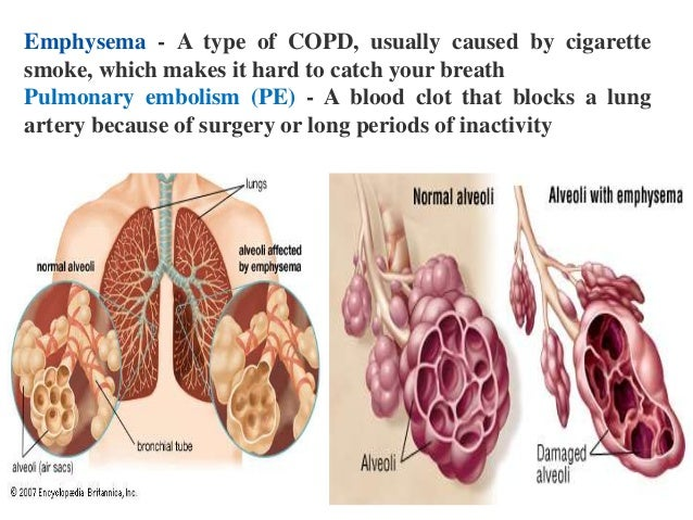 an analysis of the lung cancer effects symptoms and prevention for the disease Lung cancer: barriers and facilitators people with lung cancer their disease relating to factors that hinder or help people to report lung cancer symptoms.