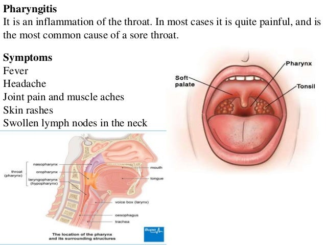 Neck and throat pain causes, sexy women fantasy art