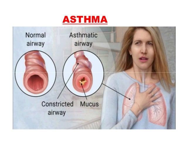 CAUSES:- -CCF -LIVER FAILURE - PERITONEAL DIALYSIS - PNEUMONIA - LUNG ABSCESS - TB - CHRONIC BRONCHITIS