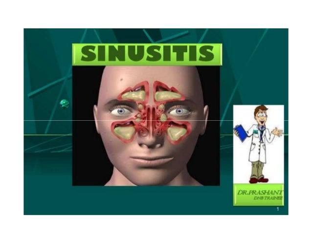 Management:- Antibiotics (broad spectrum antibiotics) Antiviral (acyclovir) Nasal decongestant Antihistamines Steam inhala...