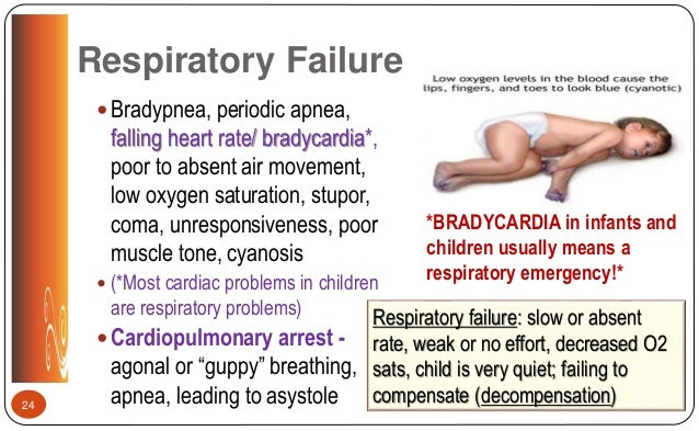 Respiratory lecture nurs 3340 fall 2017