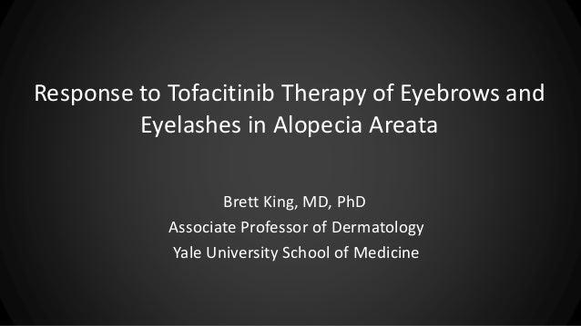 Response to Tofacitinib Therapy of Eyebrows and Eyelashes in Alopecia Areata Brett King, MD, PhD Associate Professor of De...